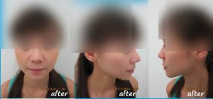 aesthetic, rhinoplasty, plastic surgery malaysia, eye bag removal, aesthetically, blepharoplasty, double eyelid surgery, aesthetic clinic, aesthetic service, aesthetic clinic in puchong, aesthetic clinic in kepong, plastic surgery, double eyelid, liposuction, breast implants, breast enlargement, rhinoplasty, double eyelid surgery, breast augmentation